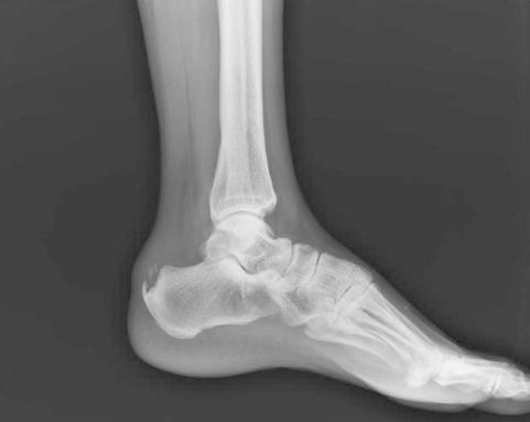 bone spurs in the foot